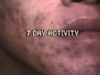 7 DAY ACTIVITY
